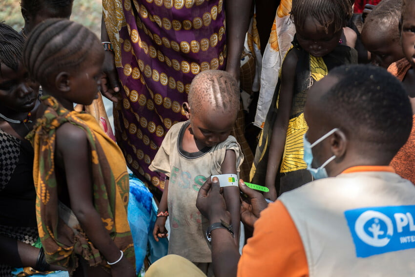 Mies Planin liiveissä mittaa etiopialaislapsen käsivarren ympärysmittaa mitalla.